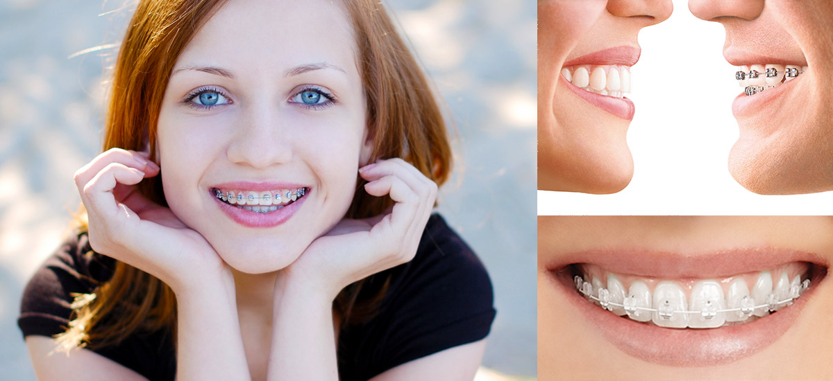 A smiling girl with braces and sub pictures of different types of braces