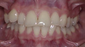 Close up view of patient B. M.'s teeth before our orthodontics treatment