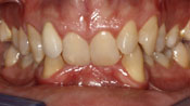 Close up view of patient D. F.'s teeth before our orthodontics treatment