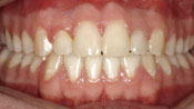 Close up view of patient E. C.'s teeth after our orthodontics treatment