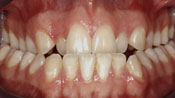 Close up view of patient E. C.'s teeth before our orthodontics treatment
