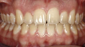 Close up view of patient H. A.'s teeth after our orthodontics treatment