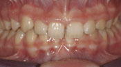 Close up view of patient J. G.'s teeth before our orthodontics treatment
