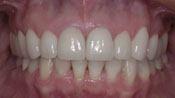 Close up view of patient J. W.'s teeth after our orthodontics treatment