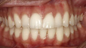 Close up view of patient K. C.'s teeth after our orthodontics treatment