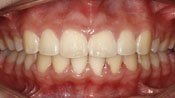 Close up view of patient K. K.'s teeth after our orthodontics treatment