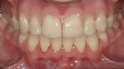 Close up view of patient M. D.'s teeth after our orthodontics treatment