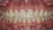 Close up view of patient M. M.'s teeth after our orthodontics treatment