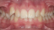 Close up view of patient M. M.'s teeth before our orthodontics treatment