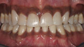 Close up view of patient M. N.'s teeth after our orthodontics treatment