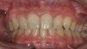 Close up view of patient P. B.'s teeth after our orthodontics treatment