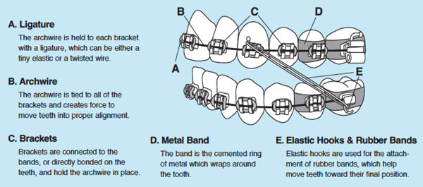 Different parts of braces.