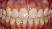 Close up view of patient A. A.'s teeth after our orthodontics treatment
