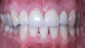 Close up view of patient C. D.'s teeth after our orthodontics treatment