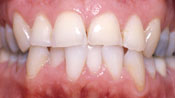 Close up view of patient C. D.'s teeth before our orthodontics treatment