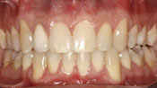 Close up view of patient D. F.'s teeth after our orthodontics treatment