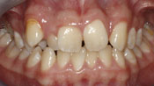 Close up view of patient H. A.'s teeth before our orthodontics treatment