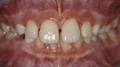 Close up view of patient J. P.'s teeth before our orthodontics treatment
