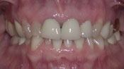 Close up view of patient J. W.'s teeth before our orthodontics treatment