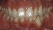 Close up view of patient K. C.'s teeth before our orthodontics treatment