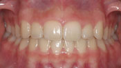 Close up view of patient K. H.'s teeth after our orthodontics treatment