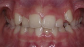 Close up view of patient K. H.'s teeth before our orthodontics treatment