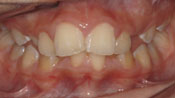 Close up view of patient K. K.'s teeth before our orthodontics treatment