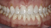 Close up view of patient L. H.'s teeth after our orthodontics treatment