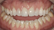 Close up view of patient L. H.'s teeth before our orthodontics treatment