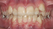 Close up view of patient M. D.'s teeth before our orthodontics treatment