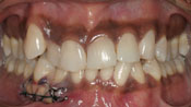 Close up view of patient M. N.'s teeth before our orthodontics treatment