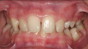 Close up view of patient P. B.'s teeth before our orthodontics treatment
