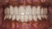 Close up view of patient S. N.'s teeth after our orthodontics treatment