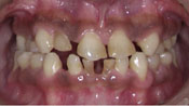 Close up view of patient S. N.'s teeth before our orthodontics treatment