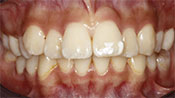 Close up view of patient A. A.'s teeth before our orthodontics treatment