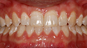 Close up view of patient O. T.'s teeth after our orthodontics treatment