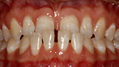 Close up view of patient O. T.'s teeth before our orthodontics treatment