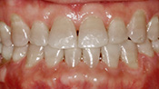 Patient SH's teeth after