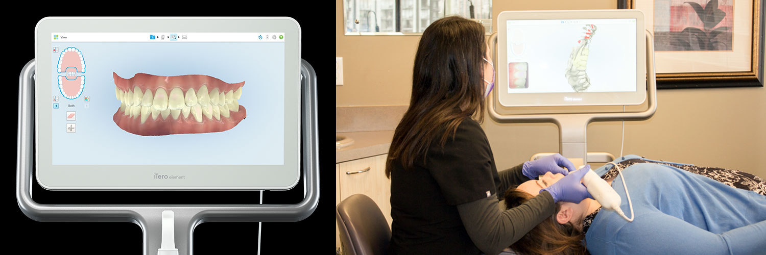 Pacific Orthodontics iTero Scanner