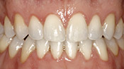 Patient CB's teeth after
