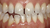 Patient CB's teeth before