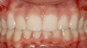 Patient CC's teeth after
